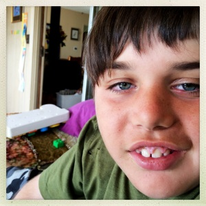 Jackson.  I a aware that he has Tuberous Sclerosis Complex